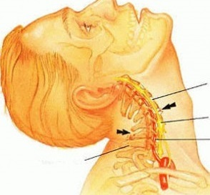 váll osteochondrosis betegség